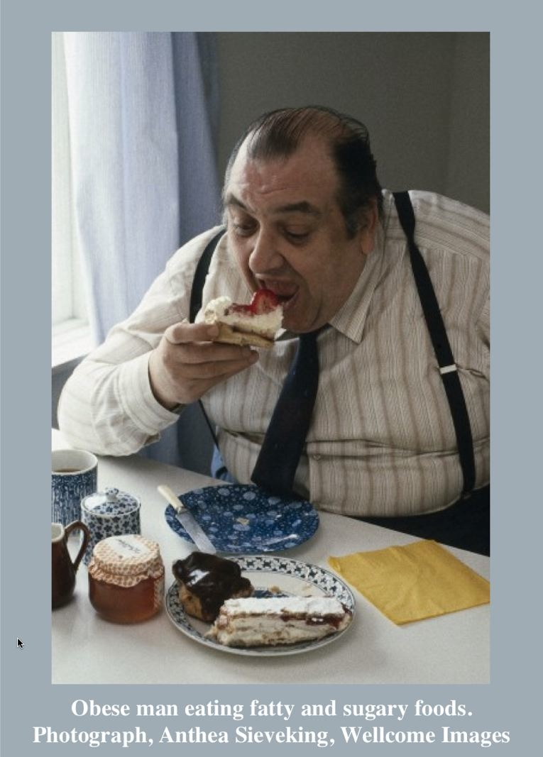 Obese man eating fatty and sugary foods. Photograph, Anthea Sieveking, Wellcome Images